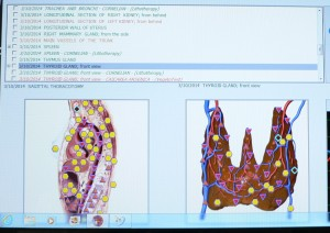 Halas thyroids