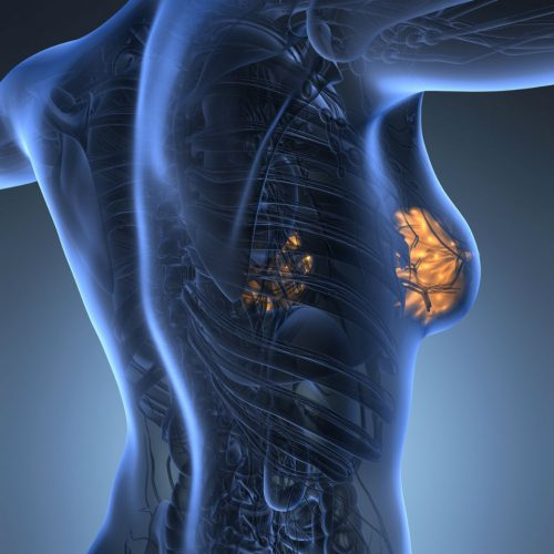 Breast cancer linked to diet rich in meat