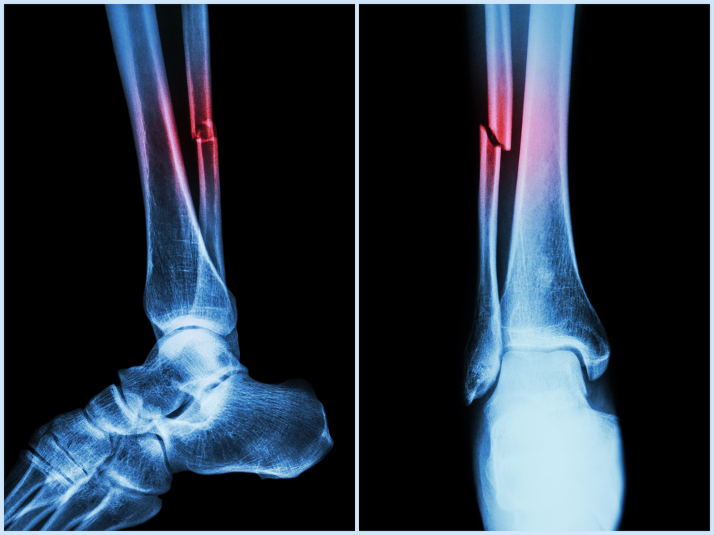 How I  have healed my broken leg naturally